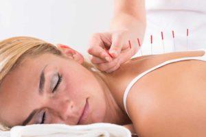 acupuncture et medecine alternative en france