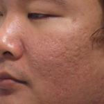Microneedling avec Dermapen Acide Hyaluronique vitamine C vitamine E mésothérapie peau esthétique france