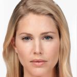 INJECTION DE BOTOX BOTOX contour des yeux rides visage esthétique france
