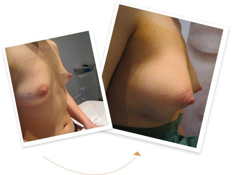 augmentation des pectoraux poitrine france